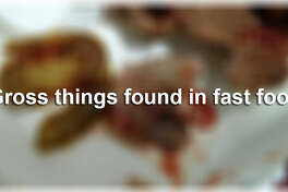 Think hair in your food is disgusting?  Here are some extreme cases that made national headlines.