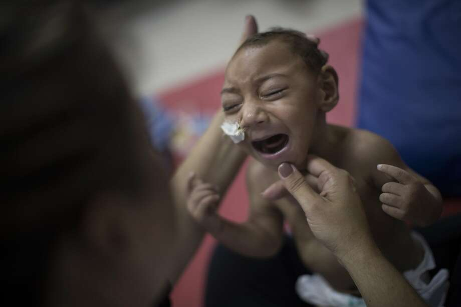 Jose Wesley Campos, 1, cries during therapy in Recife. He has breathing problems and his legs stiffen when he is picked up. Photo: Felipe Dana, Associated Press