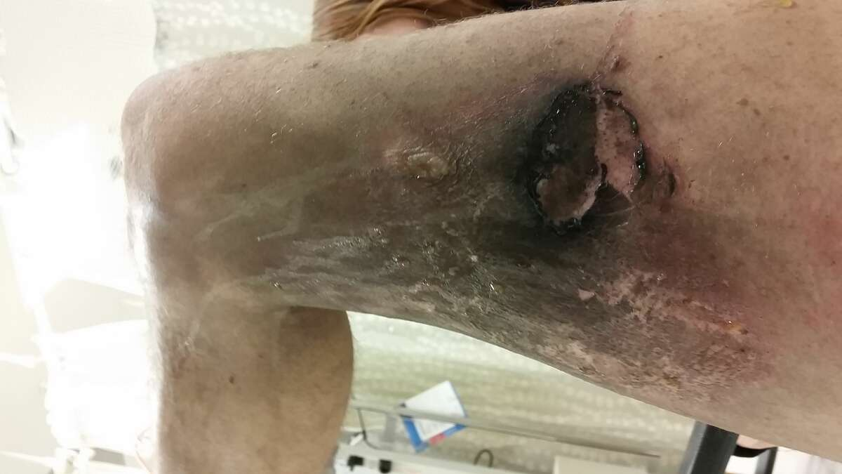 Olaf Eriksen of Seattle was walking from his car to work on April 11 when his e-cigarette exploded in his pants pocket, causing his pants to catch fire. The explosion caused serious burns to his right thigh, which later grew infected and required multiple treatments at the hospital.
