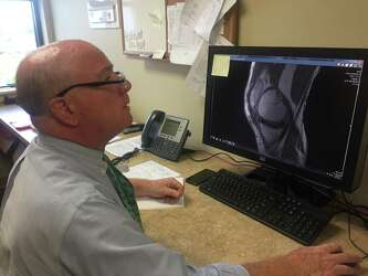 New knee cartilage implant being tested in Albany - Times Union