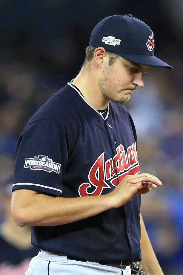 TORONTO, ON - OCTOBER 17:  Trevor Bauer #47 of the Cleveland Indians looks at his cut pinky finger in the first inning against the Toronto Blue Jays during game three of the American League Championship Series at Rogers Centre on October 17, 2016 in Toronto, Canada.  (Photo by Vaughn Ridley/Getty Images) ORG XMIT: 676240193 Photo: Vaughn Ridley / 2016 Getty Images