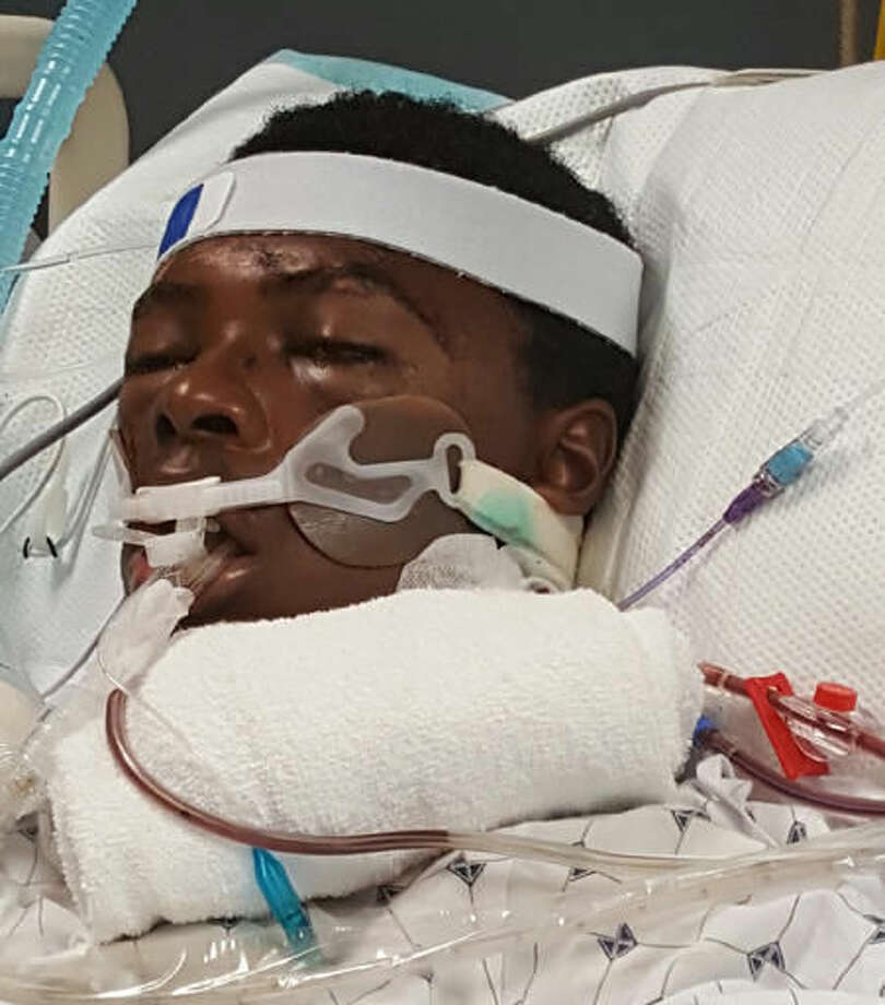 This photo provided by Prinice Thomas shows his nephew Tawon Boyd, 21, in the hospital after he was punched and held to the ground by Baltimore County police officers after a confrontation outside his home on Sunday, Sept. 18, 2016. Boyd died Wednesday, Sept. 21, 2106, three days after the fight with the officers. Police are investigating his death, and an autopsy is pending. Police responded to Boyd's home in Middle River, Md., after Boyd's girlfriend called 911 because he was behaving strangely. (Prinice Thomas via AP)