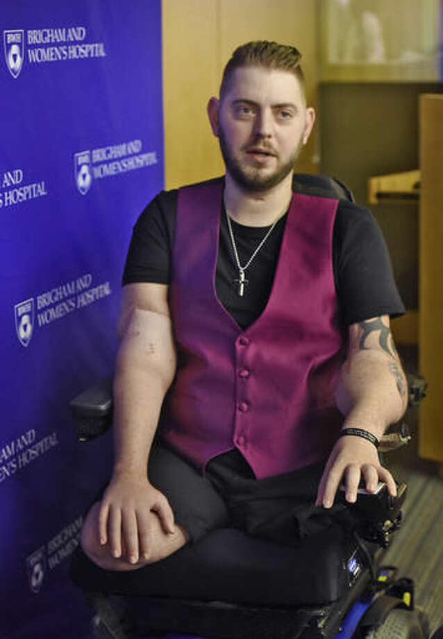 Retired Marine Sergeant John Peck speaks about his double arm transplant, Wednesday, Oct. 5, 2016 at Brigham and Women's Hospital in Boston. Peck, a former Marine sergeant who underwent a double arm transplant said Wednesday that the best part about having arms again is that he can hold his fiancee's hand and pursue his lifelong dream of becoming a chef. (Patrick Whittemore/The Boston Herald via AP)