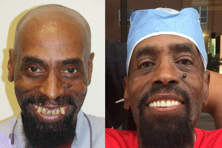 Anthony Clarke, a housekeeping supervisor at UH, is shown before and after dental work paid for by UH football coach Tom Herman. Photo: Dr. Sridhar Sista/Dentiq Dentistry