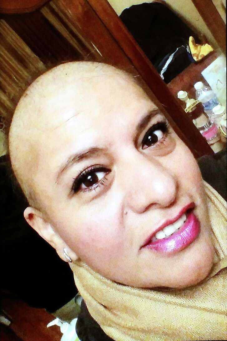 A photo of Lilia Rios after she lost her hair due to chemotherapy for breast cancer last year.