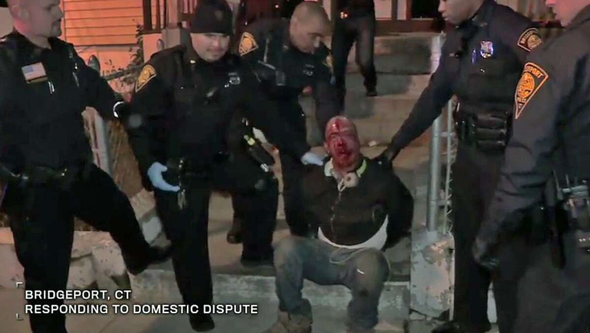 Police detain Ernesto Castro, 37, pictured center with blood on his face, who was later charged with disorderly conduct and resisting arrest. Familiy members believe he was mistreated.Bridgeport, CT, Nov. 18, 2016