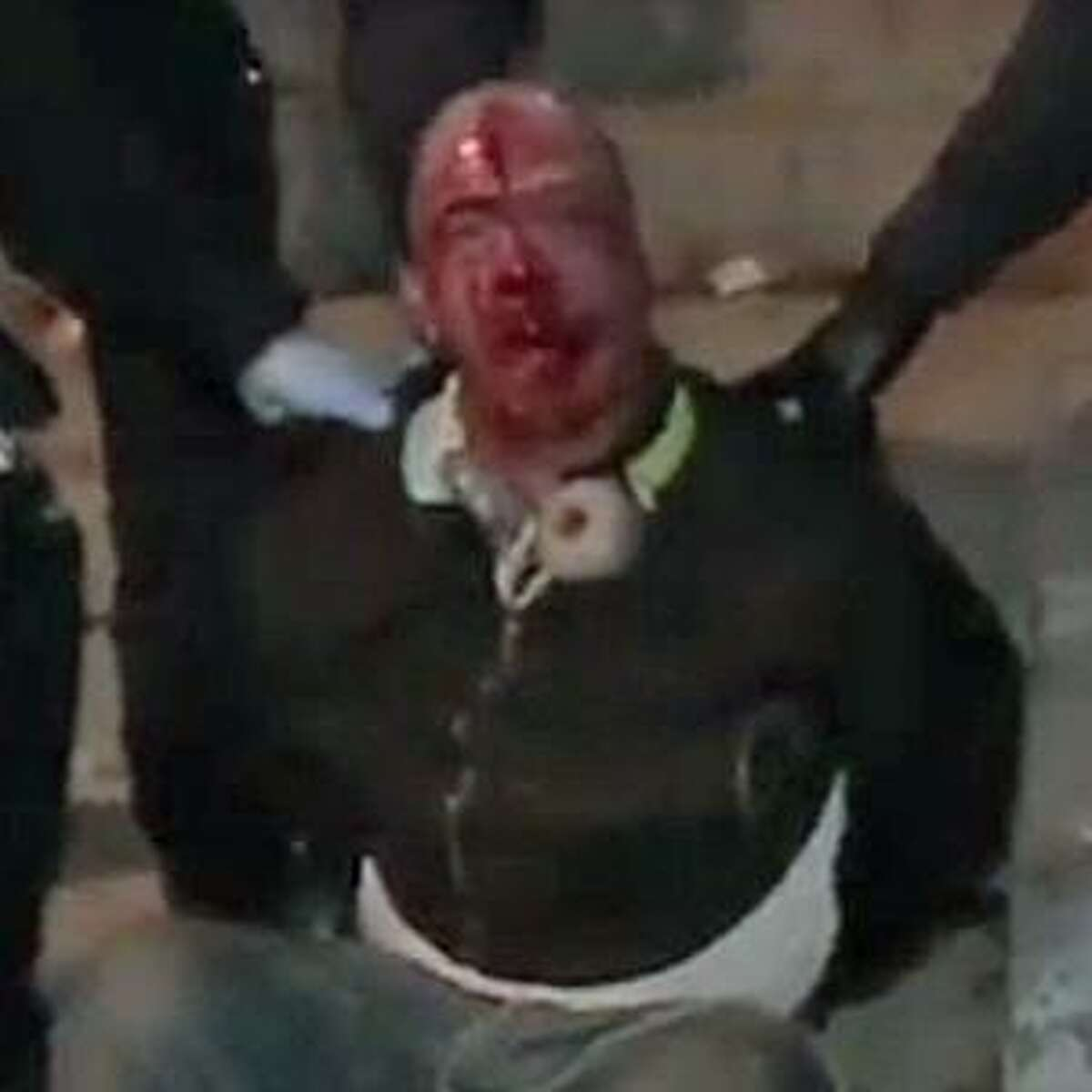 Police detain Ernesto Castro, 37, pictured in this cropped screenshot with blood on his face, who was later charged with disorderly conduct and resisting arrest. Familiy members believe he was mistreated.Bridgeport, CT, Nov. 18, 2016