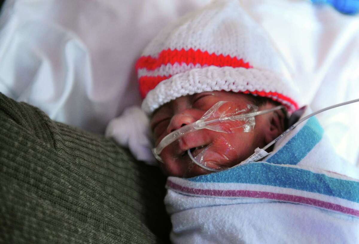 Gavin Jung, born on Oct. 30th at only 27 weeks, rests with his mom Alice Jung, of Stratford, at The Yale New Haven Children's Hospital NICU (neonatal intensive care unit) at Bridgeport Hospital in Bridgeport, Conn. on Tuesday Nov. 22, 2015. The Bridgeport Hospital Foundation has launched a campaign to raise the balance of $7 million to modernize the unit.