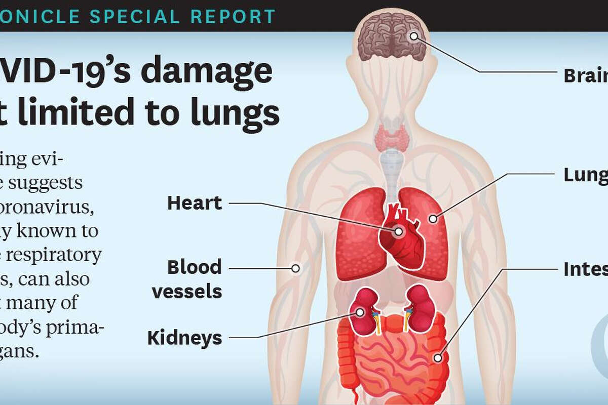 How Covid-19 ravages the body