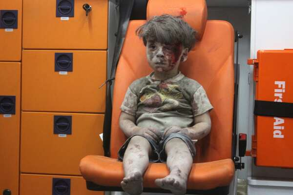 5-year-old wounded Syrian kid Omran Daqneesh sits alone in the back of the ambulance after he got injured during Russian or Assad regime forces air strike targeting the Qaterji neighbourhood of Aleppo on August 17, 2016.