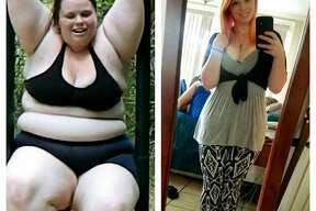 Kayla Hurley, 24, posted before and after photos on Imgur Dec. 26, 2016 documenting her massive weight-loss transformation, garnering thousands of views and comments.