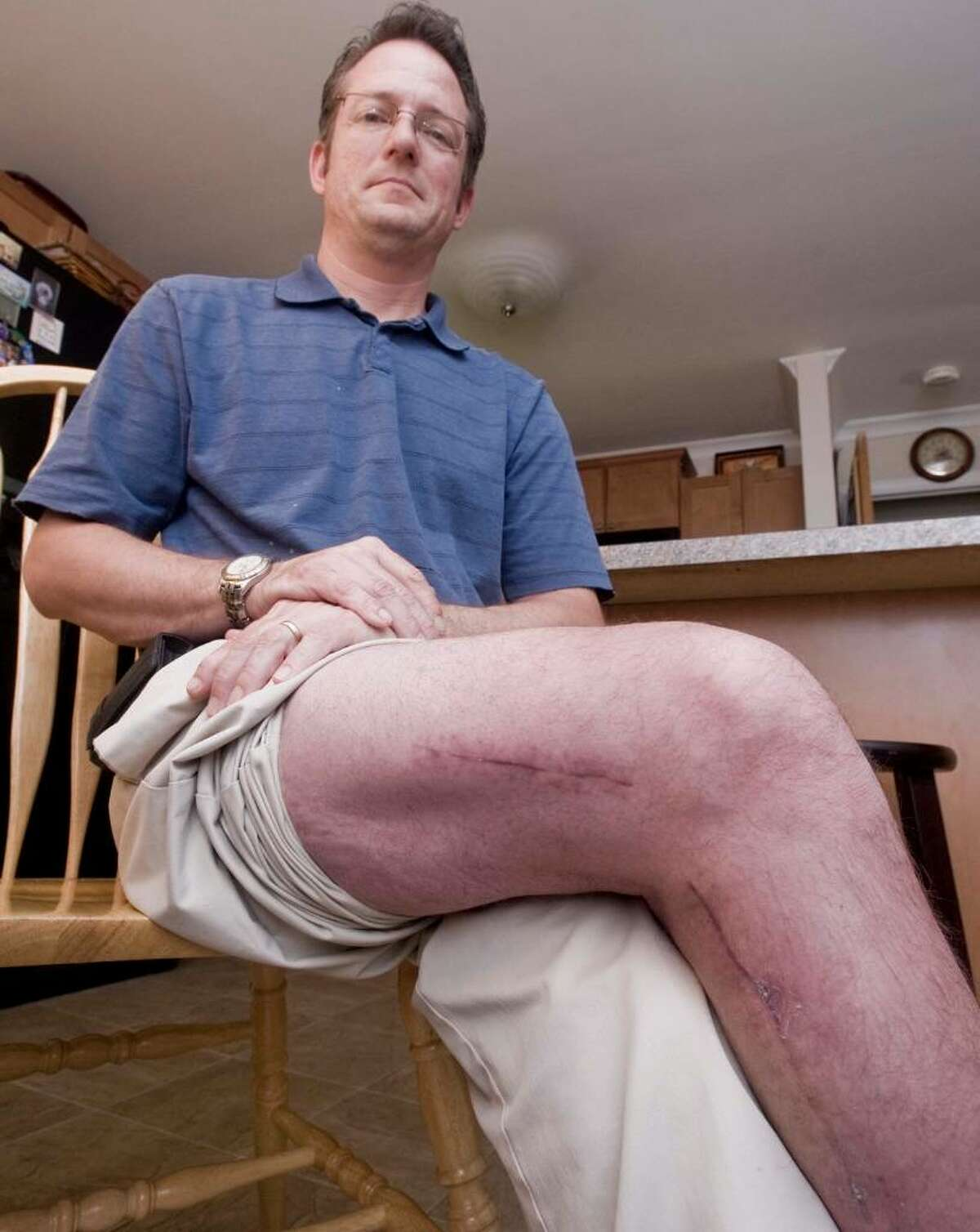 Dan Aziere suffers from a rare disease called multiple hereditary exostosis, which causes excess bones to grow in the body. He's already had 42 operations to remove about 15 excess bones. Some of the incision scars are shown evident on his right leg. Thursday, May 20, 2010