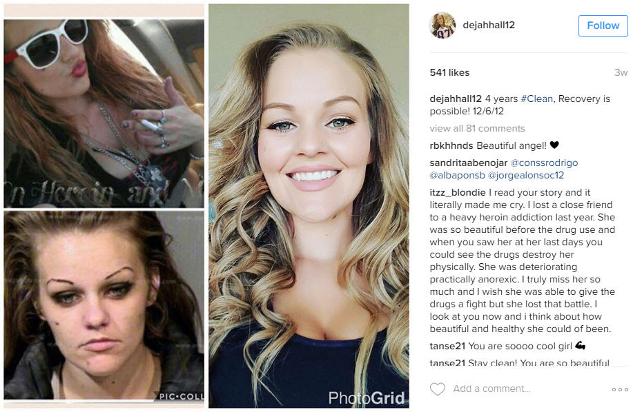 Former drug addicts share their recovery photos on social ...