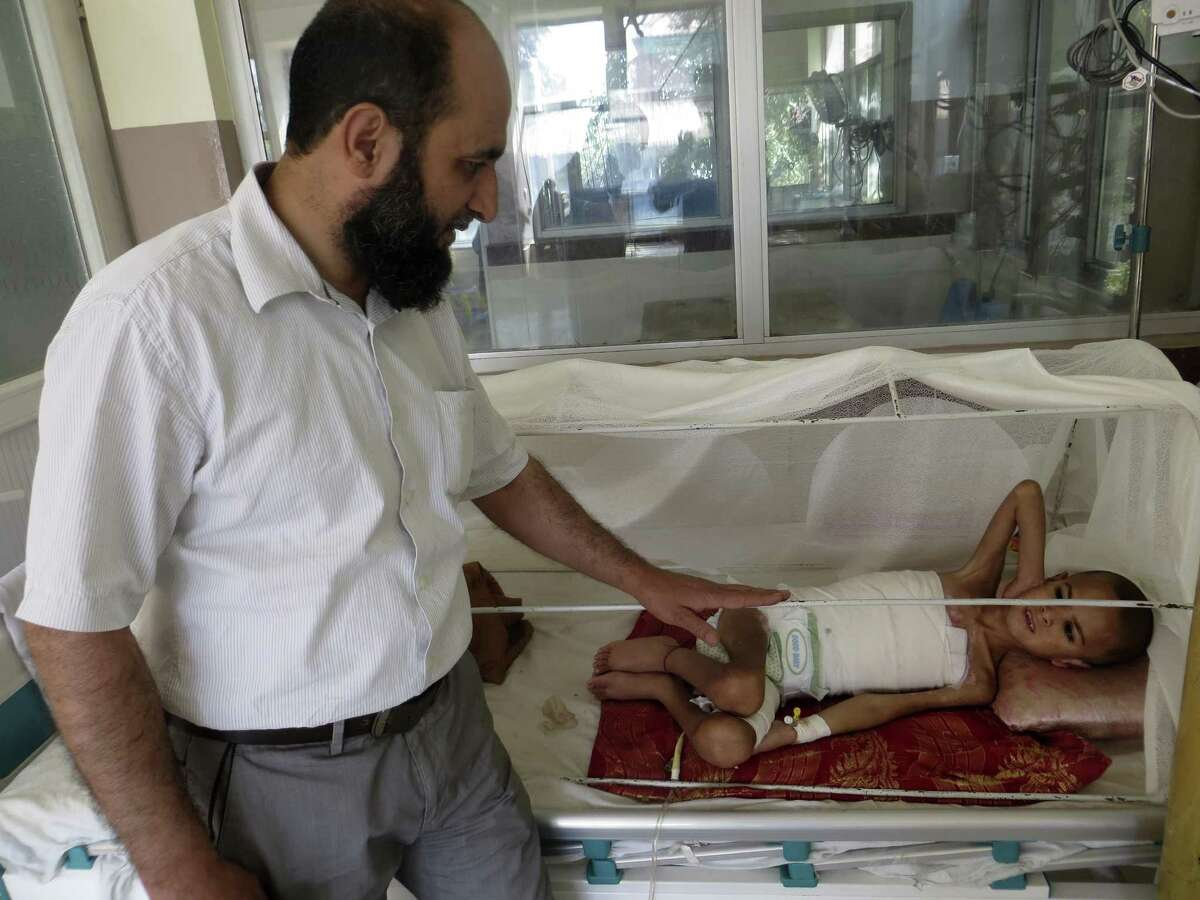 Dr. Habib Rahman, a pediatric burn surgeon at the Indira Gandhi Institute of Child Health in Kabul, checks on 6-year-old Asadullah Mustafa, whose torso was badly burned in a petroleum fire. Rahman?'s patients, most of whom are injured in household accidents, come to the hospital from across Afghanistan.
