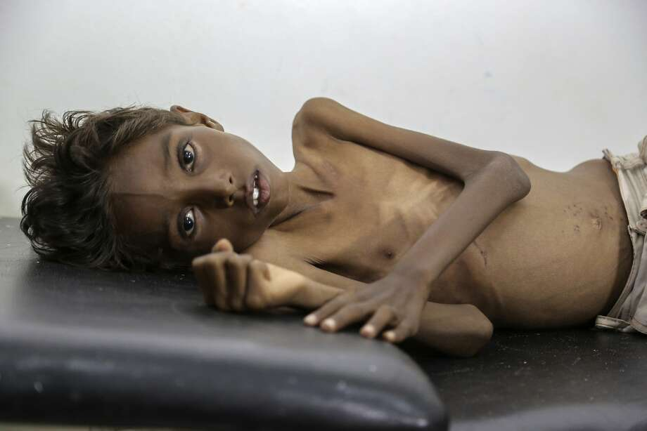 Mohannad Ali, a 5-year-old victim of widespread malnutrition, rests on a hospital bed in Abs, Yemen. Photo: Hakim, Associated Press