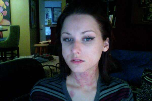 Anne-Christine Johnson took these selfies after an attack by her former husband, now charged with her murder.