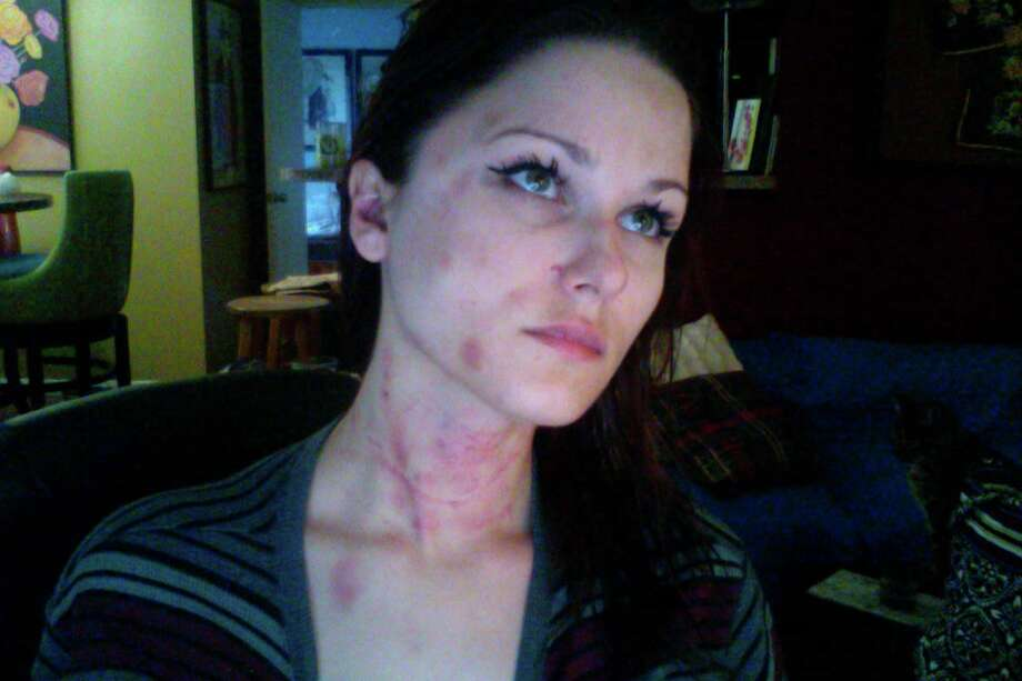 Anne-Christine Johnson took these selfies after an attack by her former husband, now charged with her murder. Photo: Harvey Rice, Courtesy Of Stephanie Johnson