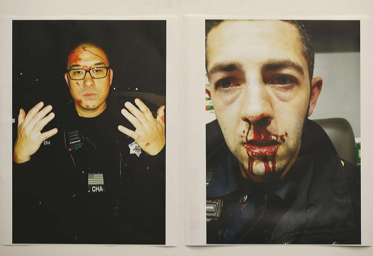 Pictures of SFPD officers Kenneth Cha (left) and Colin Patino (right) after their altercation with 42 year old Sean Moore earlier this month released on Wednesday, January 18, 2017, in San Francisco, Calif.