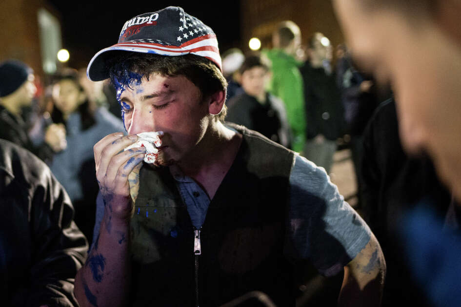 A hopeful attendee of controversial Breitbart.com editor Milo Yiannopoulos' speech wipes blood from his nose after a tangle with protesters at University of Washington on Friday, Jan. 20, 2016