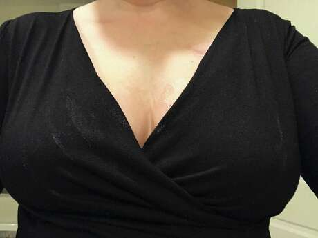 My chest and blouse after applying Bosom Couture Boob Glue. Notice the white streaks on the blouse and the shiny excess on the top of the boob. The streaks and excess wiped off easily with a damp cloth. Photo: Emily Spicer / San Antonio Express-News