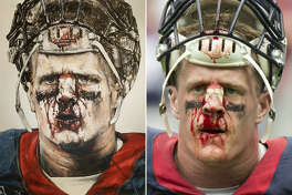Medical student and fan of J.J. Watt Riaz Fabian freely drew the famous portrait of the Houston Texans player with his bloody nose. With the use of mixed media, the portrait came out expertly similar to the original photograph.