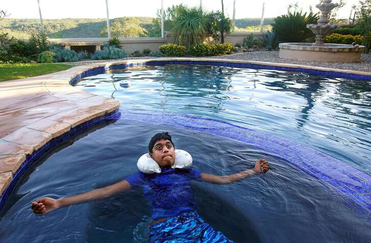 Vikash Muruhathasan swims in the pool at his home as part of a therapeutic regiment for his arm in San Diego, CA on Friday, February 24, 2017.   He was affected by the polio-like virus in 2011, when he lost almost all use of his left arm. He's since had good recovery with extensive physical therapy.(Photo by Sandy Huffaker, Special to The Chronicle)