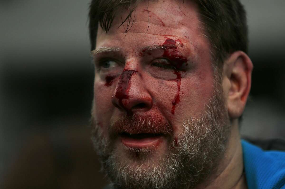 A Trump supporter who preferred not to give his name is seen with a bloodied face after repeatedly getting into physical fights with anti-fascist protesters during a Pro-President Donald Trump rally and march at the Martin Luther King Jr. Civic Center park March 4, 2017 in Berkeley, Calif.