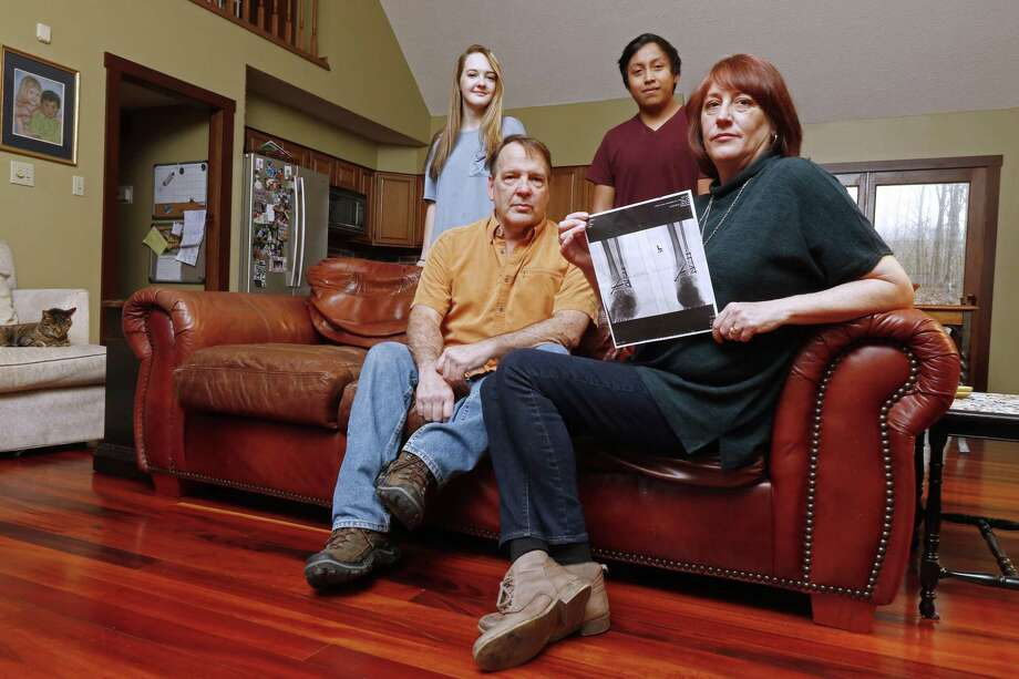 Leslie Kurtz (right) — shown with her husband, Bart Bartram, daughter Rainey, and son Rio — holds a print of an X-ray of her ankle. Leslie Kurtz needed three plates, eight screws and a big assist from her insurer after breaking every bone in her ankle during a whitewater rafting accident in 2015. But that protection may not exist next year because insurers have abandoned her exchange. Photo: Wade Payne /Associated Press / FR23601 AP