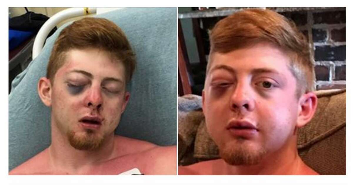 Noah Frillou, 18, was the victim of a brutal attack on Cryst Beach, his mother Kim Smalley said. >>Keep clicking for scenes from spring break around Texas this year.