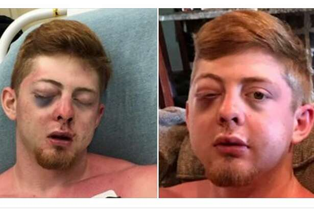 Noah Frillou, 18, was the victim of a brutal attack on Cryst Beach, his mother Kim Smalley said.