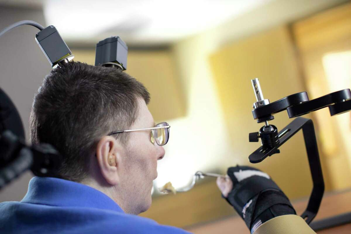 Bill Kochevar,  56. paralyzed from the shoulders down after a cycling accident a decade ago, was able to feed himself for the first time in eight years after doctors implanted electronic sensors into his brain and arm that restored the connection.