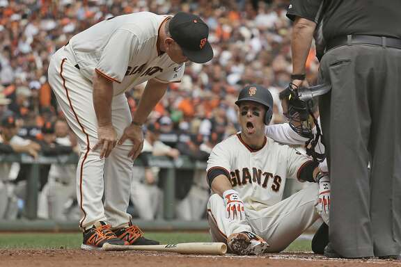 San Francisco Giants manager Bruce Bochy, left, checks Buster Posey on the ground at home plate after he was hit by Arizona Diamondbacks starting pitcher Taijuan Walker in the first inning of a baseball game Monday, April 10, 2017, in San Francisco. Posey was taken out of the game. (AP Photo/Eric Risberg)