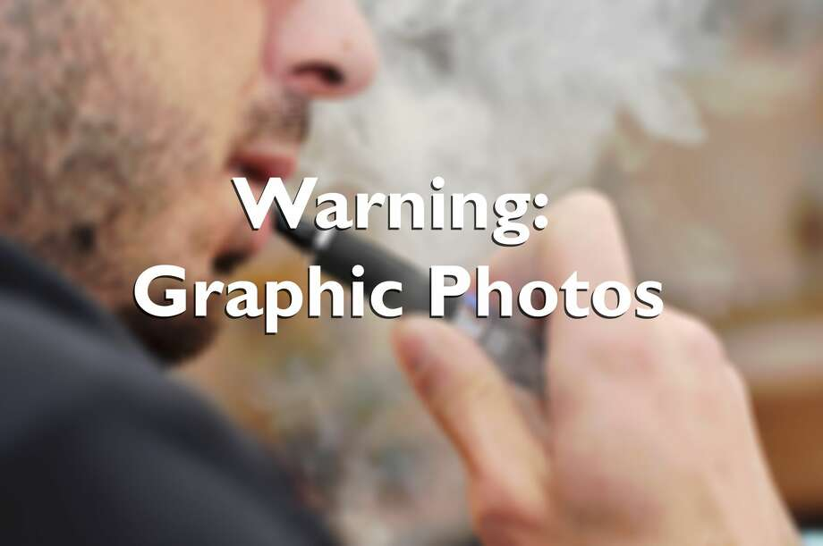 This graphic photo warning shows a man smoking an e-cigarette. Photo: Martina Paraninfi/Getty Images