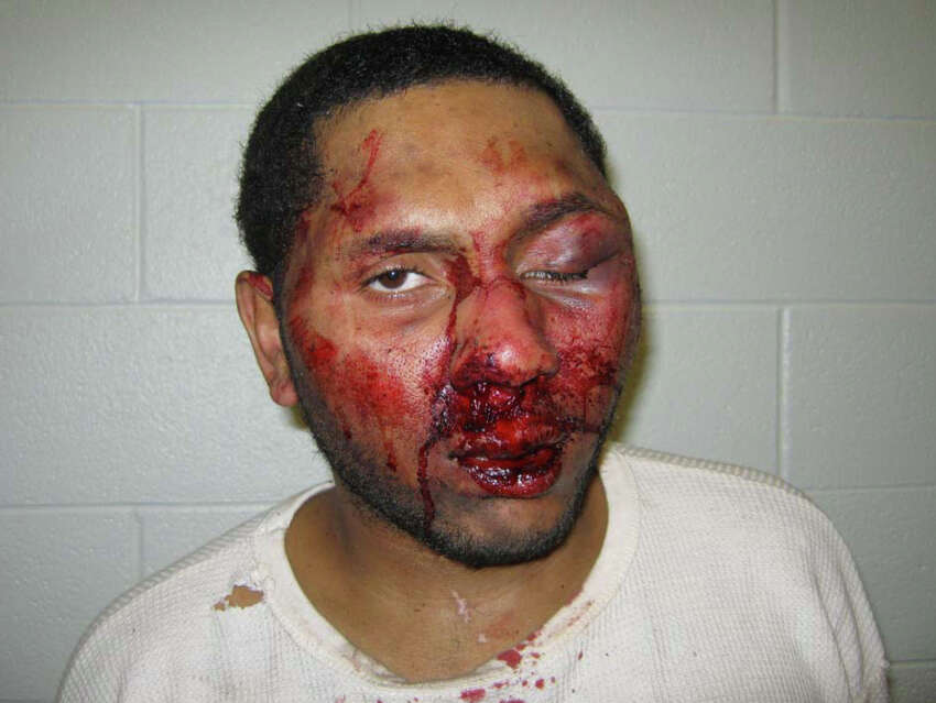 Manuel Toomer suffered a fractured nose when multiple Schenectady police officers kicked and punched him at his residence in January 2014. He was Tasered three times and later pleaded guilty to disorderly conduct to settle more serious charges that his attorney said were filed to justify the beating. (Federal Court Records)