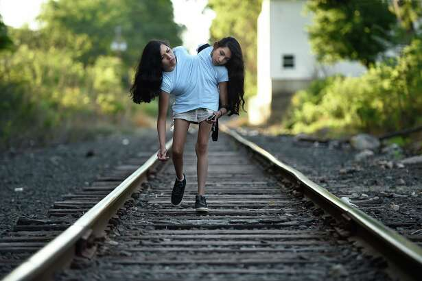 Conjoined twins Carmen and Lupita Andrade, 16, walk along a train track behind the home of their seamstress where they just had a fitting for a dress on Sept. 26, 2016 in New Milford, Conn. The seamstress sews together two dresses, shirts or jackets for the twins' upper bodies which are joined at the torso. They were killing time waiting for their mother who was talking to the seamstress after the fitting. (Cloe Poisson/Hartford Courant/TNS)