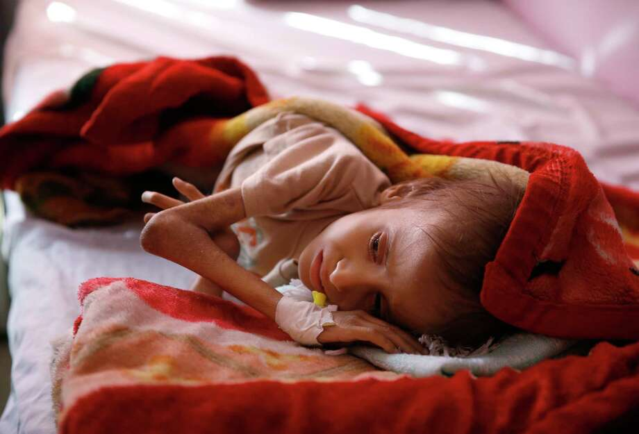 FILE -- In this Jan. 24, 2016 file photo, a malnourished child lies in a bed waiting to receive treatment at a therapeutic feeding center in a hospital in Sanaa, Yemen. The U.N. secretary-general and high-ranking government officials from dozens of countries are meeting Tuesday, April 25, 2017, in Geneva to drum up funds for war-torn Yemen. The impoverished Mideast country on the tip of the Arabian Peninsula is considered the world's greatest humanitarian crisis. (AP Photo/Hani Mohammed, File) Photo: Hani Mohammed, STR / Copyright 2017 The Associated Press. All rights reserved.