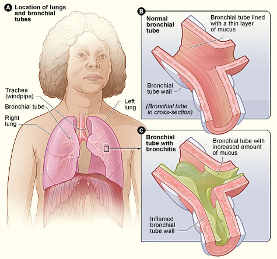 Many elderly people suffer from chronic bronchitis, inflammation of the airways that lead to the lungs. People with the condition have a cough  that brings up mucus, made by the lining of  the bronchial tubes. Bronchitis also may cause wheezing, chest pain or discomfort, a low fever and shortness of breath. Photo: National Institutes Of Health