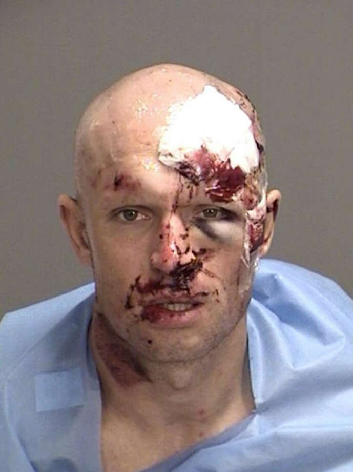 A bloody mugshot from College Station this past week shows the aftermath of a collision between a deer and a motorcyclist who was later charged with drug possession.Click through to see the most common crimes that get people sent to prison in Texas... Photo: Brazos County Jail