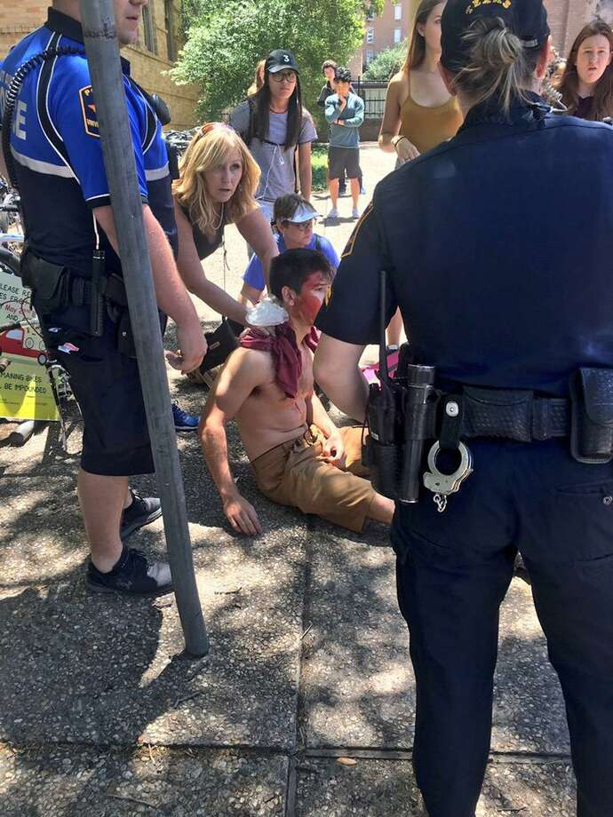A person is treated by first responders after a deadly stabbing attack on the University of Texas campus in Austin on May 1, 2017. Photo: Emily Johnson /for The Associated Press / Emily Johnson
