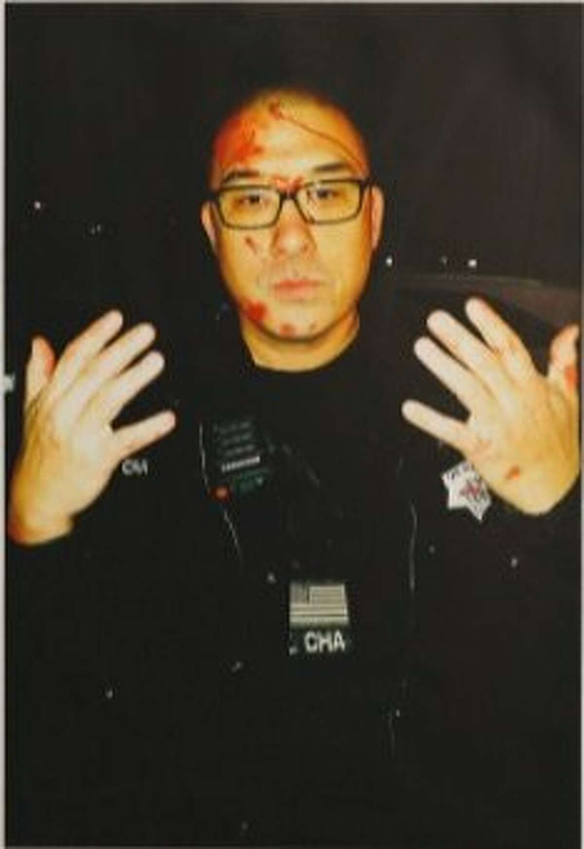 Officer Kenneth Cha was involved in both of San Francisco's only two police shootings in 2017, according to the public defender's office. Here, Cha displays injuries allegedly sustained in a Jan. 6 confrontation with a mentally ill man at his Ocean View home that ended in Cha shooting and seriously injuring the man.