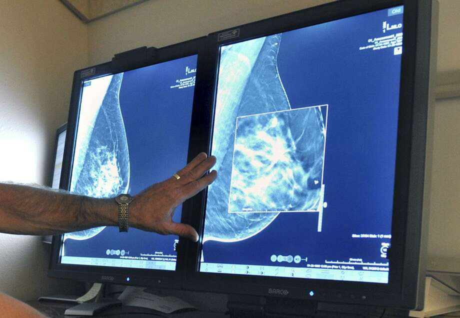 A radiologist compares an image from earlier, 2-D technology mammogram to the new 3-D Digital Breast Tomosynthesis mammography in Wichita Falls, Texas in 2012. The technology can detect much smaller cancers earlier. Photo: Torin Halsey /Associated Press / Stratford Booster Club