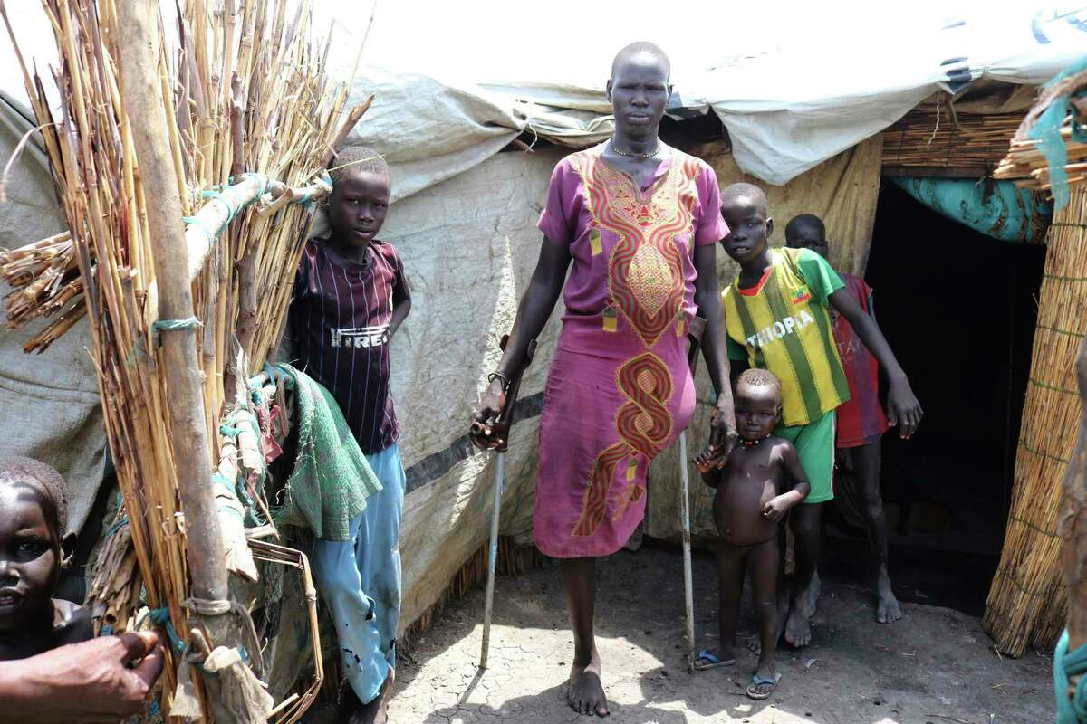 In this photo of Friday, June 2, 2017, Mary Nyakwas stands with her children outside her hut in Bentiu South Sudan. Mary lost her leg to a crocodile while hiding in the swamps, as she and her four children fled the fighting in her village. More than 1.2 million disabled people are being left behind in South Sudan's brutal civil war. The U.N and aid agencies are being told to step up, as those