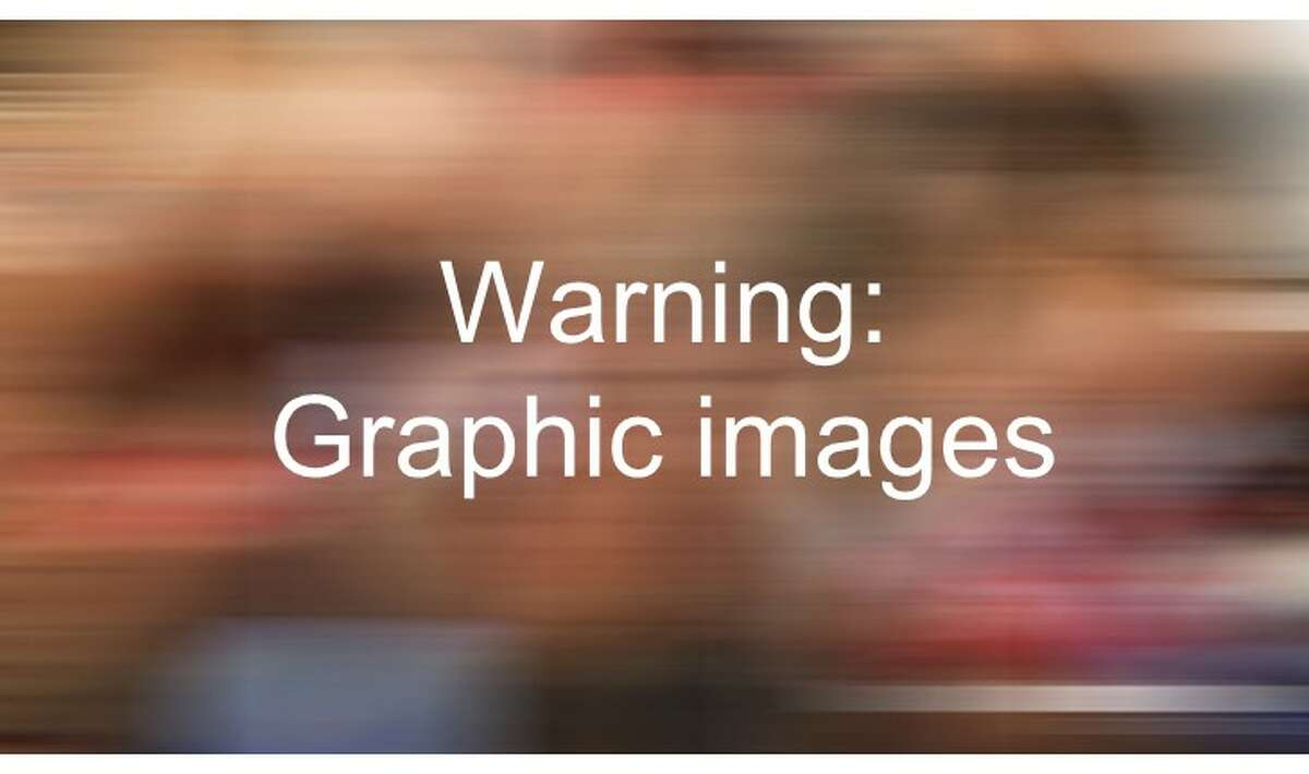 Warning: Graphic images