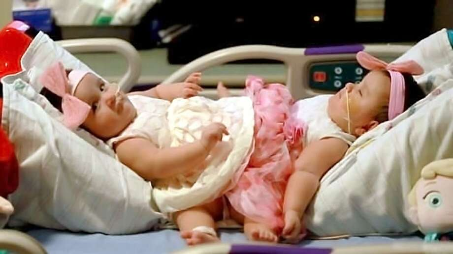 A CellRight Technologies product was used to help repair the abdominal walls of conjoined twin sisters Scarlett, left, and Ximena Hernandez-Torres following their separation surgery last year at Driscoll Children's Hospital in Corpus Christi, Xconomy reported. Universal City-based CellRight was acquired by U.K.-based Tissue Regenix Group in a deal reportedly worth $30 million. Photo: (Joshua Thelin /Driscoll Children's Hospital Via AP)