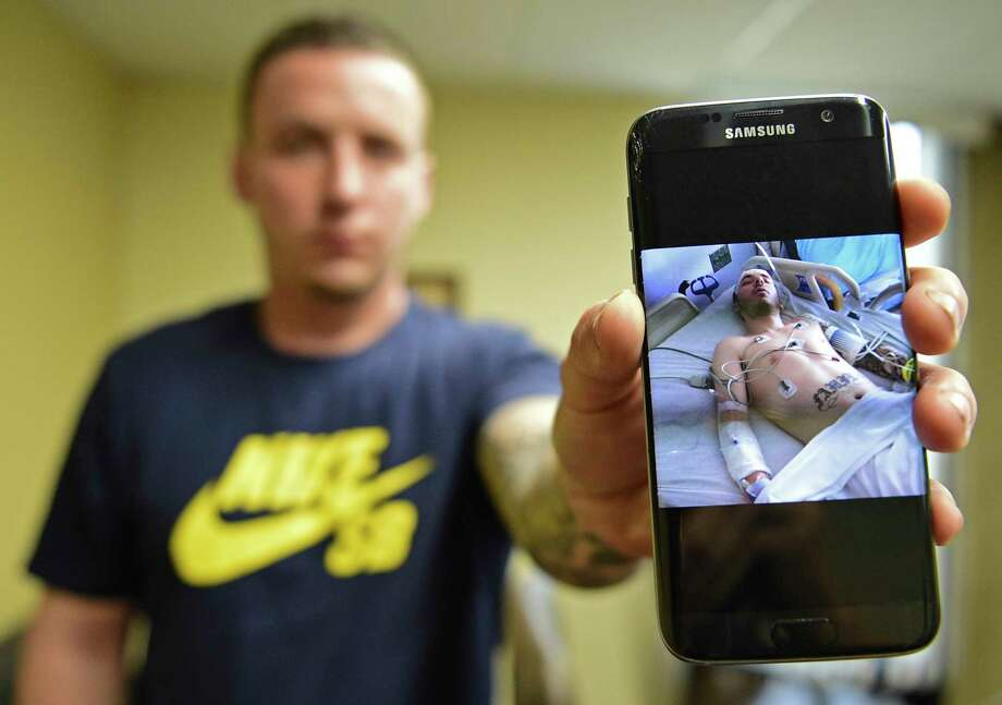 "Paul Wright shows a picture of himself in the hospital after a near fatal overdose in 2015, Thursday, June 15, 2017, at the Neil Kennedy Recovery Clinic in Youngstown, Ohio. Republican efforts to roll back ""Obamacare"" are colliding with the opioid epidemic. Cutbacks would hit hard in states that are deeply affected by the addiction crisis and struggling to turn the corner. The issue is Medicaid, expanded under former President Barack Obama. Data show that Medicaid expansion is paying for a large share of treatment costs in hard hit states. (AP Photo/David Dermer) Photo: David Dermer, FRE / AP 2017"