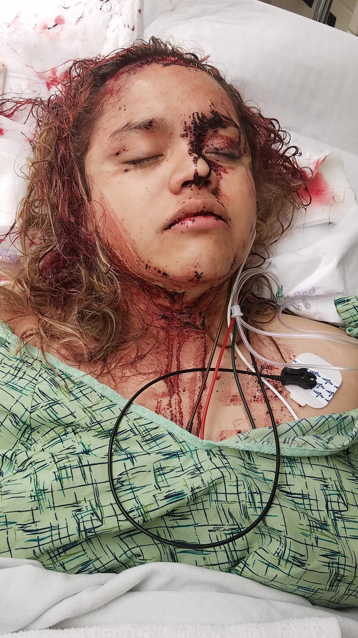 Texas Mom Shares Graphic Photos Of Daughter S Injuries As Police Continue Manhunt For Boyfriend San Antonio Express News