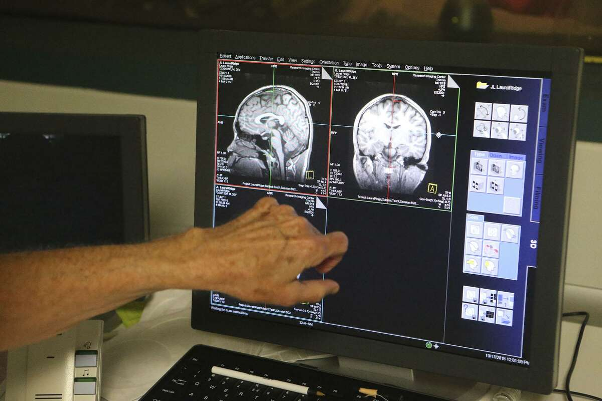 Doctor Feng Gao, a reserach scientist, looks at brain images from a magnetic resonance imager at the UT Health Scince Center's Greehey Academic and Research Campus. Lead investigator Dr. Peter Fox there is involved in a study that will test the use of magnetic current to treat depression.
