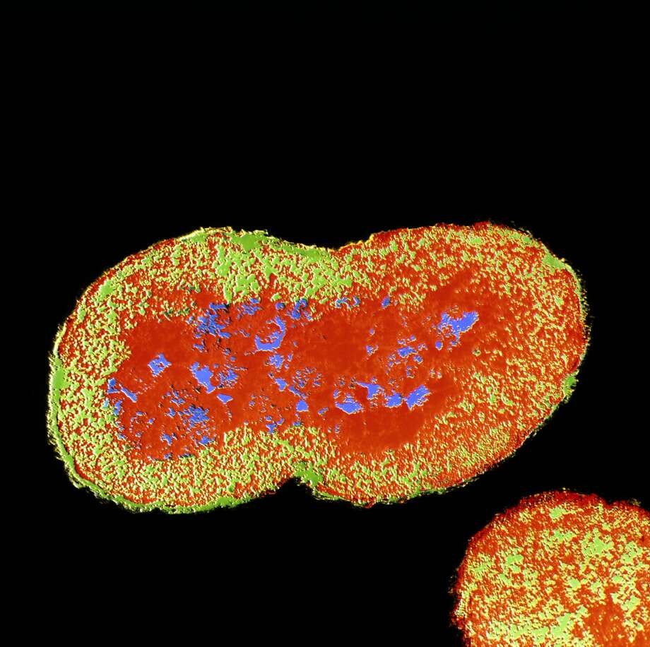 Researchers with the World Health Organization say antibiotic-resistant strains of gonorrhea are on the rise. Photo: Science Photo Library - MOREDUN ANIMAL HEALTH LTD/Getty Images