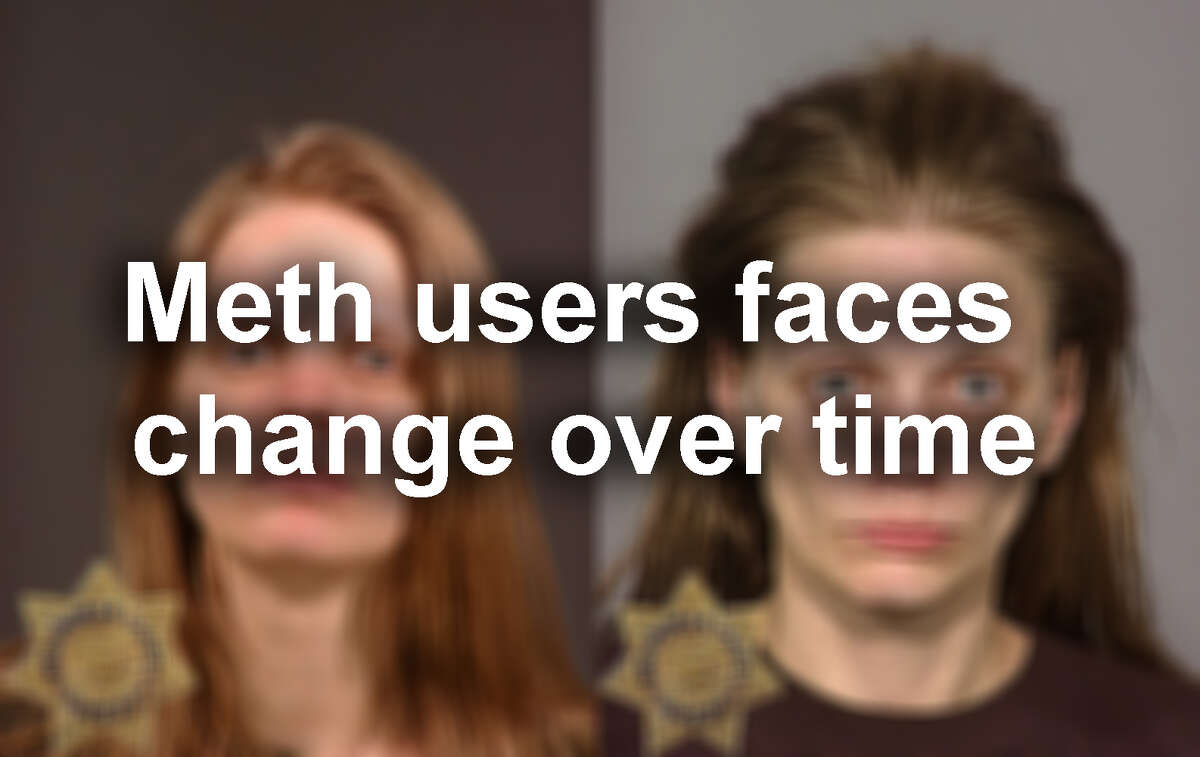 Click through our gallery of mugshots of people before and after they used meth...