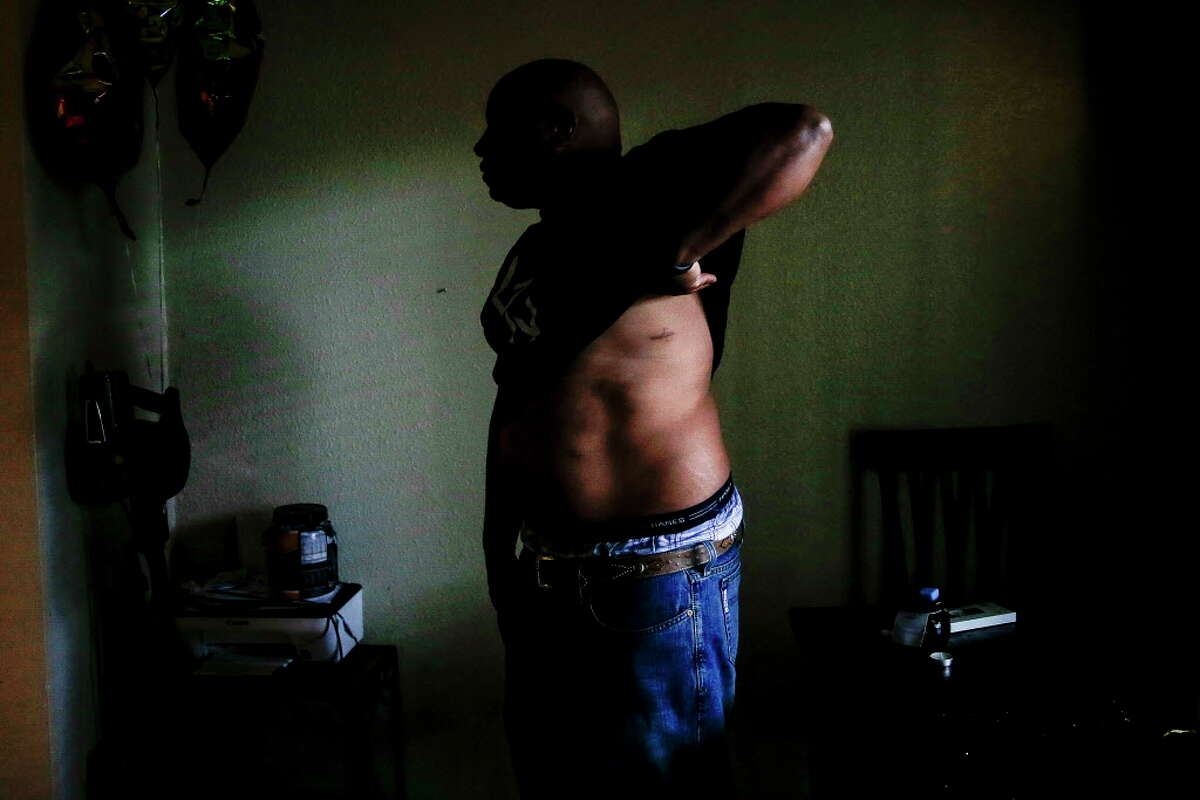 Reginald Rossow lifts his shirt to show his scars in his apartment Tuesday, June 13, 2017 in Clute. Rossow was shot through his apartment wall while he was sleeping by an off duty police officer who was living in the apartment next to his.